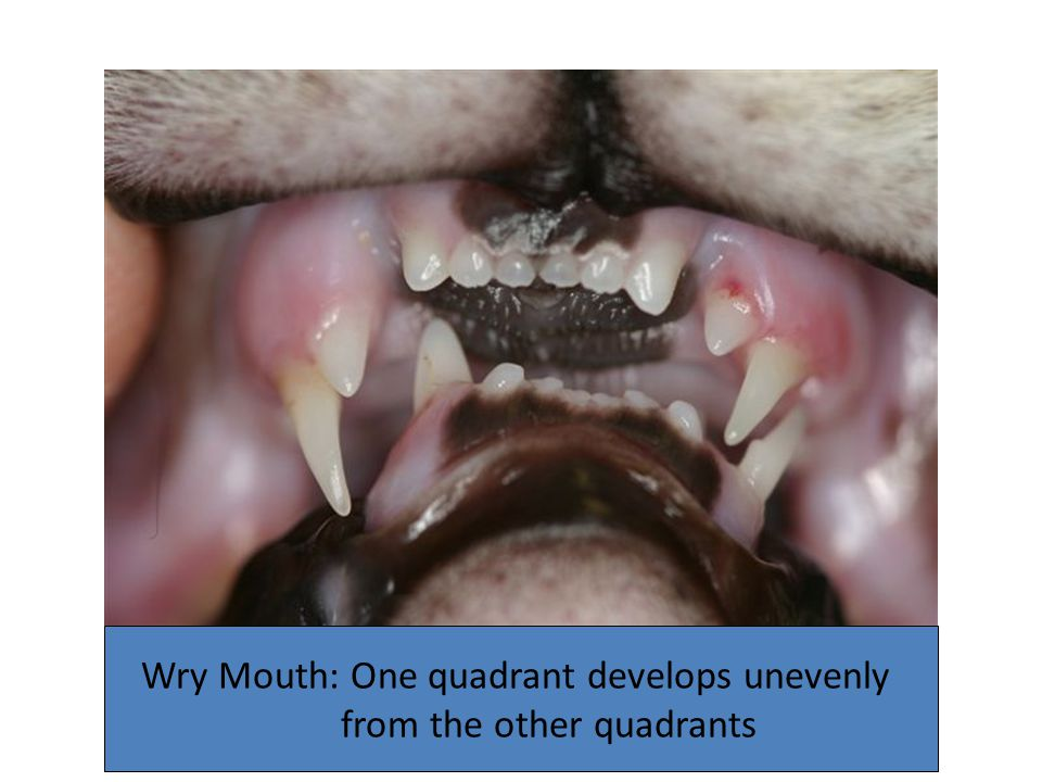 Wry Mouth: One quadrant develops unevenly from the other quadrants