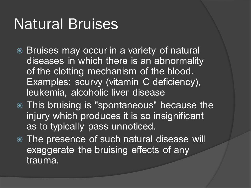 Natural Bruises