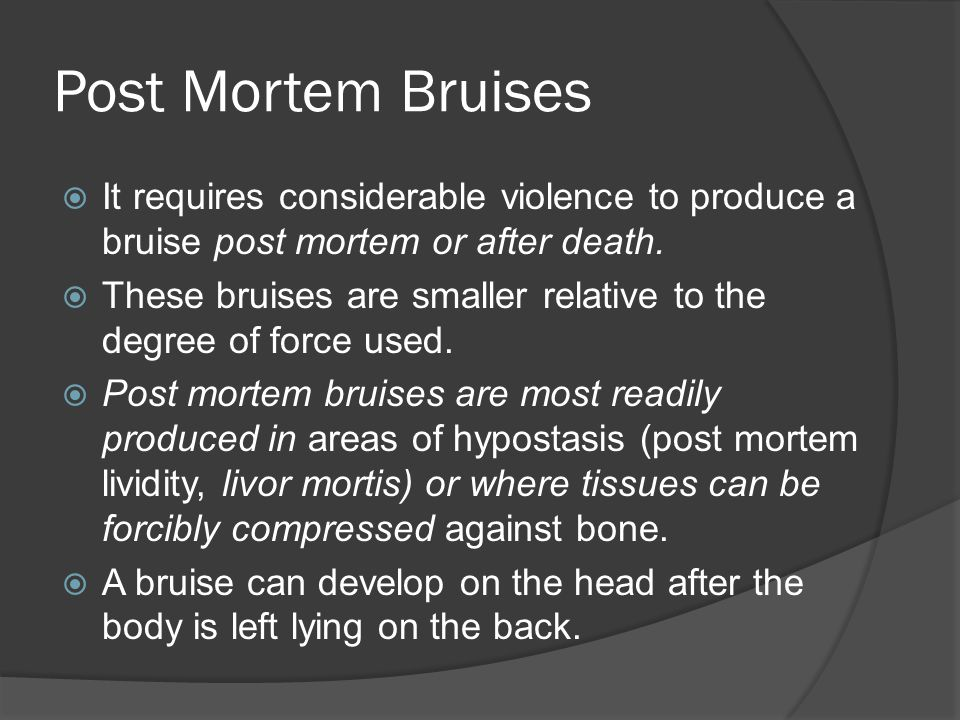 Post Mortem Bruises It requires considerable violence to produce a bruise post mortem or after death.