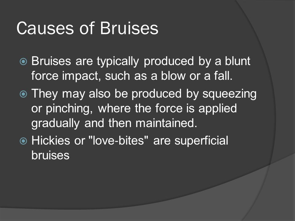 Causes of Bruises Bruises are typically produced by a blunt force impact, such as a blow or a fall.