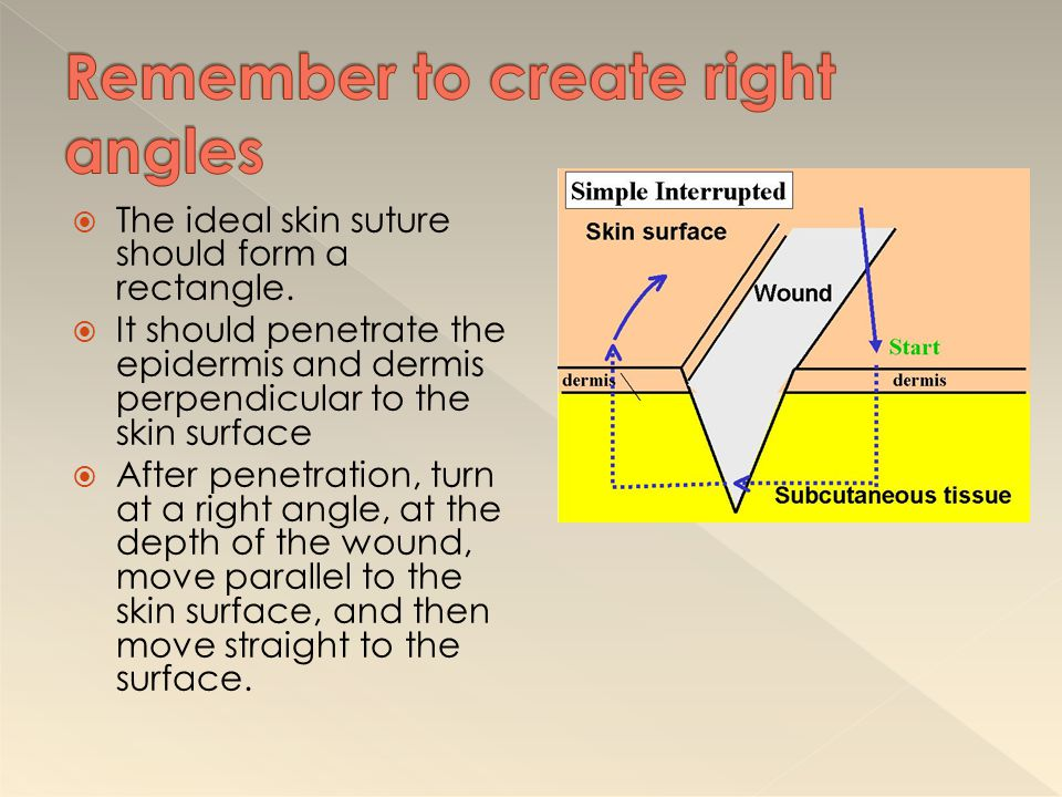 Remember to create right angles