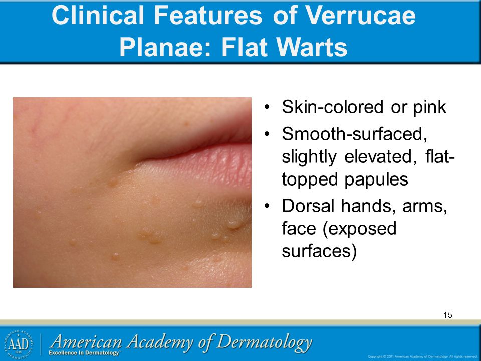 Clinical Features of Verrucae Planae: Flat Warts
