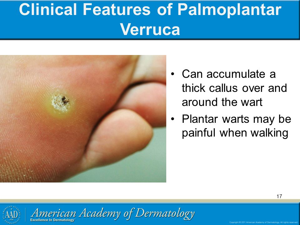 Clinical Features of Palmoplantar Verruca