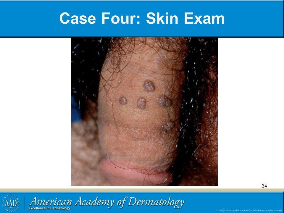 Case Four: Skin Exam