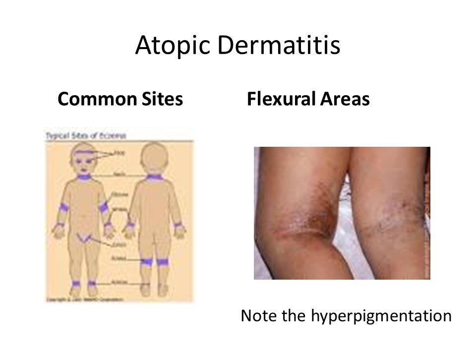 Atopic Dermatitis Common Sites Flexural Areas