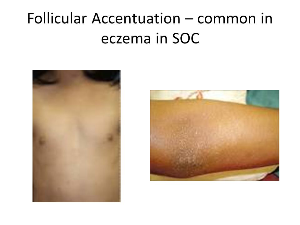 Follicular Accentuation – common in eczema in SOC