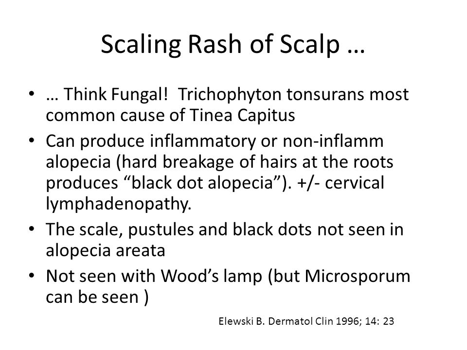 Scaling Rash of Scalp … … Think Fungal! Trichophyton tonsurans most common cause of Tinea Capitus.