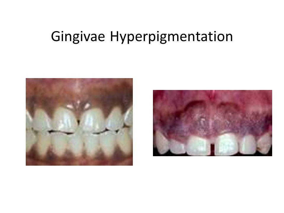 Gingivae Hyperpigmentation