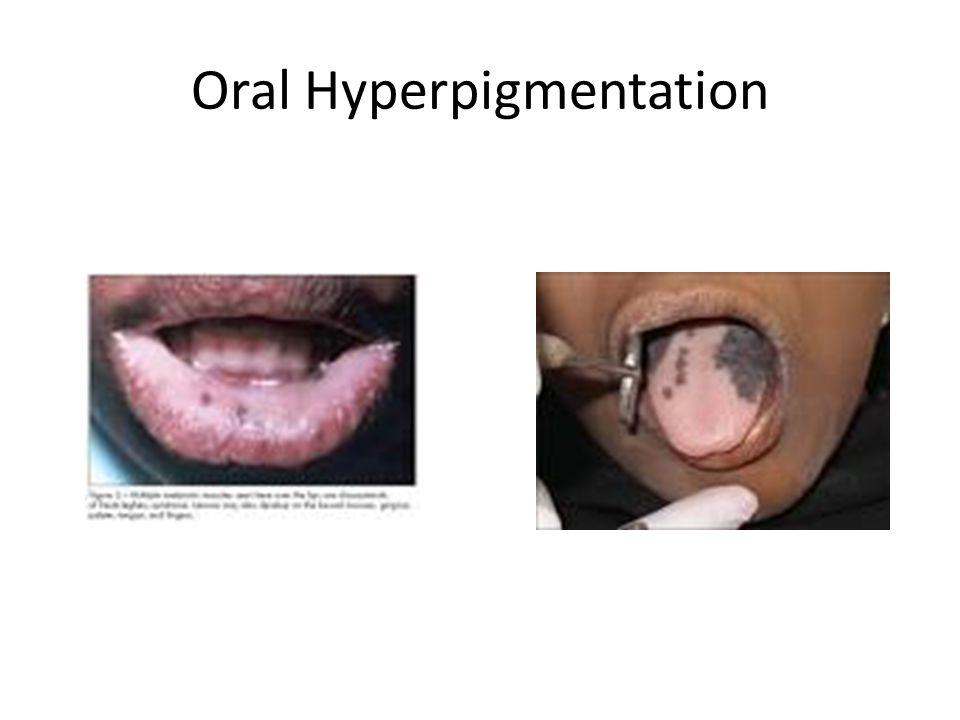 Oral Hyperpigmentation