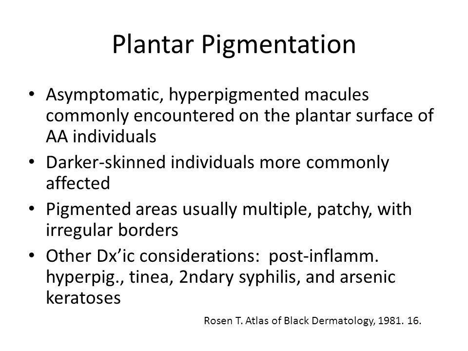 Plantar Pigmentation Asymptomatic, hyperpigmented macules commonly encountered on the plantar surface of AA individuals.