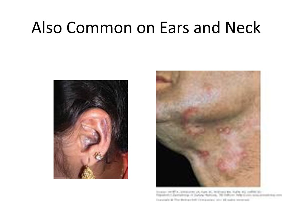Also Common on Ears and Neck