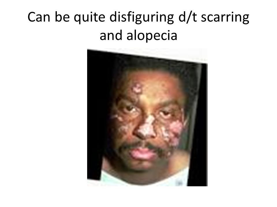 Can be quite disfiguring d/t scarring and alopecia
