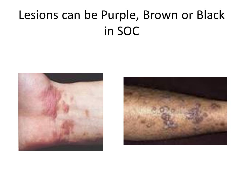 Lesions can be Purple, Brown or Black in SOC