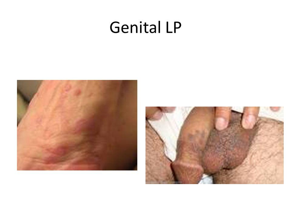 Genital LP