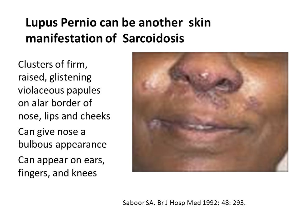 Lupus Pernio can be another skin manifestation of Sarcoidosis