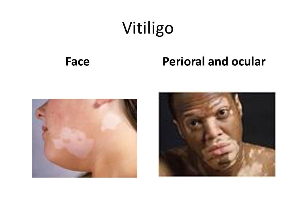 Vitiligo Face Perioral and ocular
