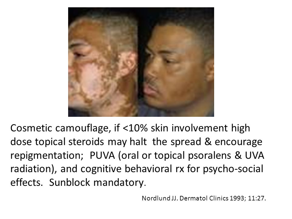 Cosmetic camouflage, if <10% skin involvement high dose topical steroids may halt the spread & encourage repigmentation; PUVA (oral or topical psoralens & UVA radiation), and cognitive behavioral rx for psycho-social effects. Sunblock mandatory.