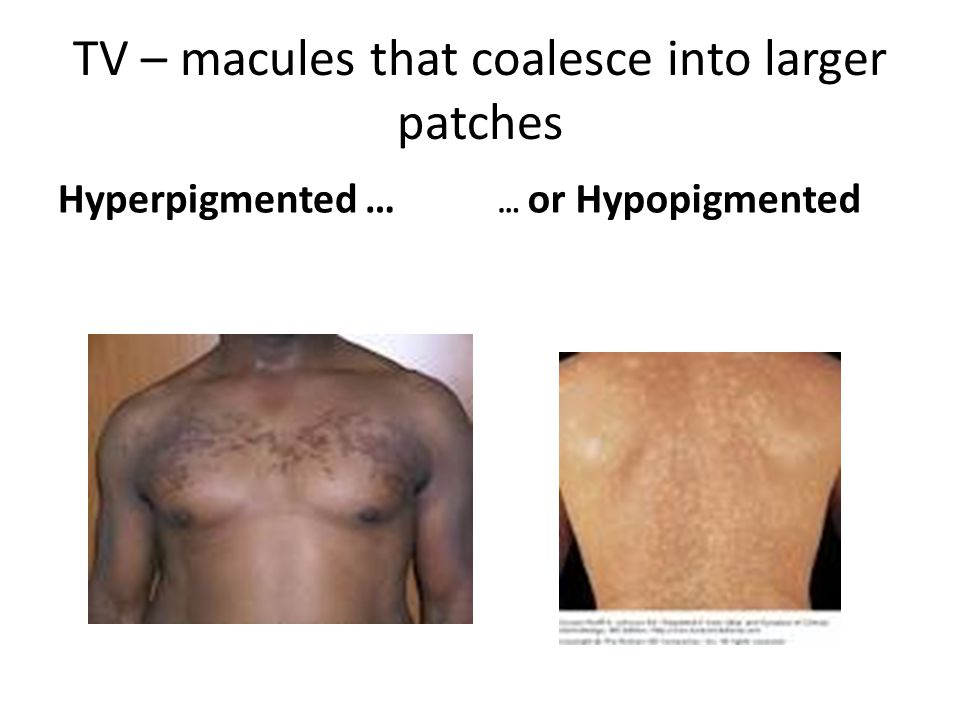 TV – macules that coalesce into larger patches