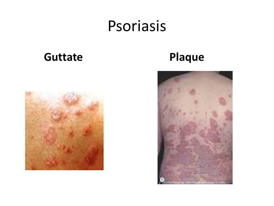 Psoriasis Guttate Plaque