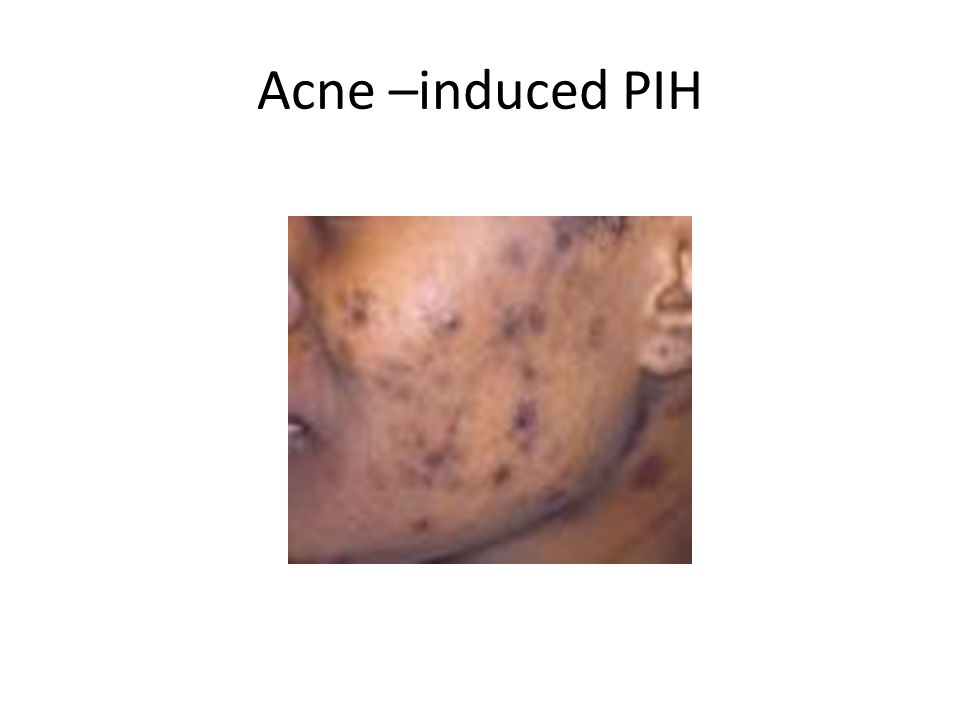 Acne –induced PIH