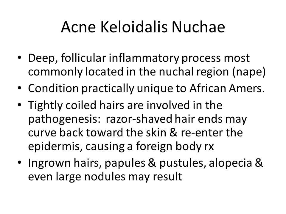 Acne Keloidalis Nuchae