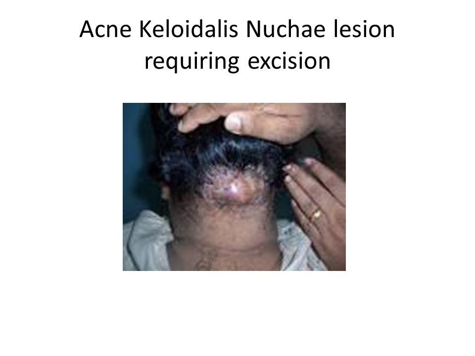 Acne Keloidalis Nuchae lesion requiring excision