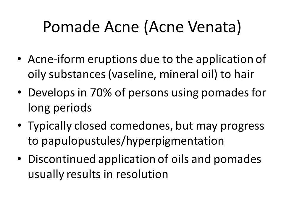 Pomade Acne (Acne Venata)