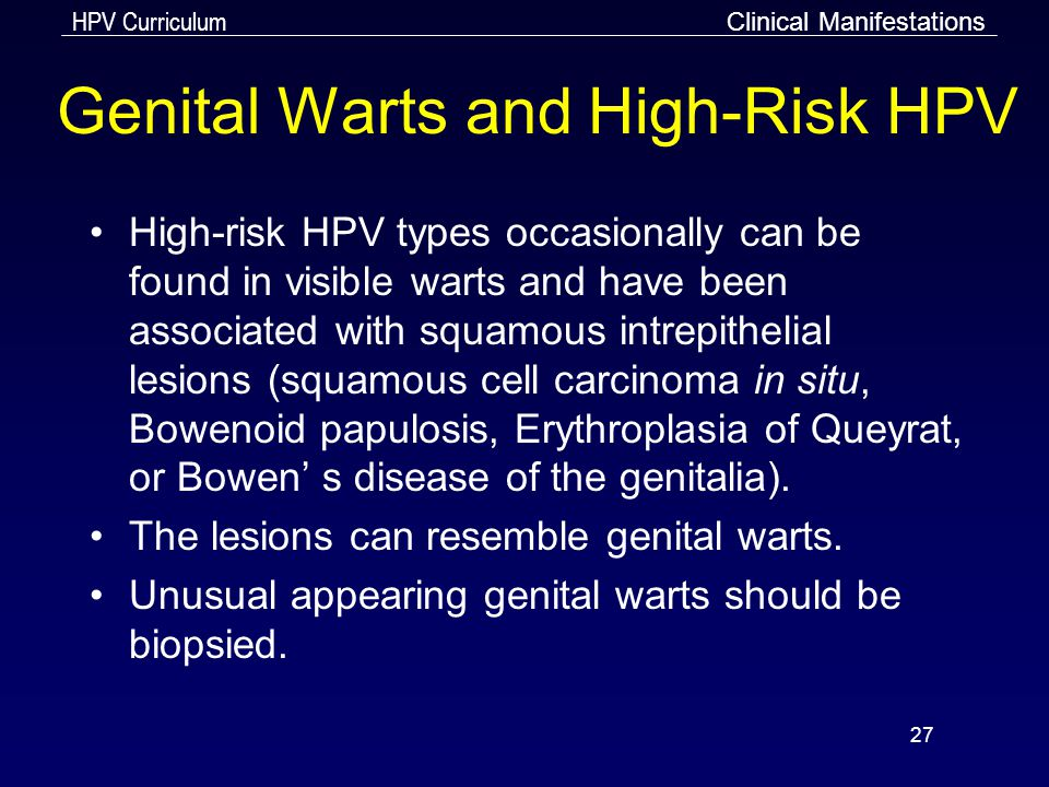 Genital Warts and High-Risk HPV