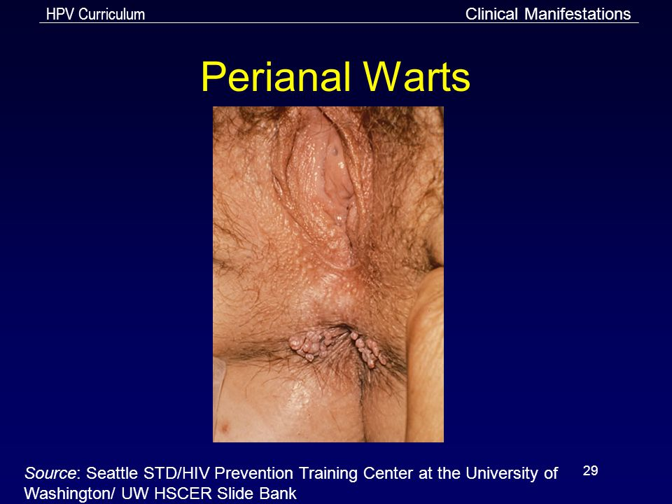 Perianal Warts Clinical Manifestations