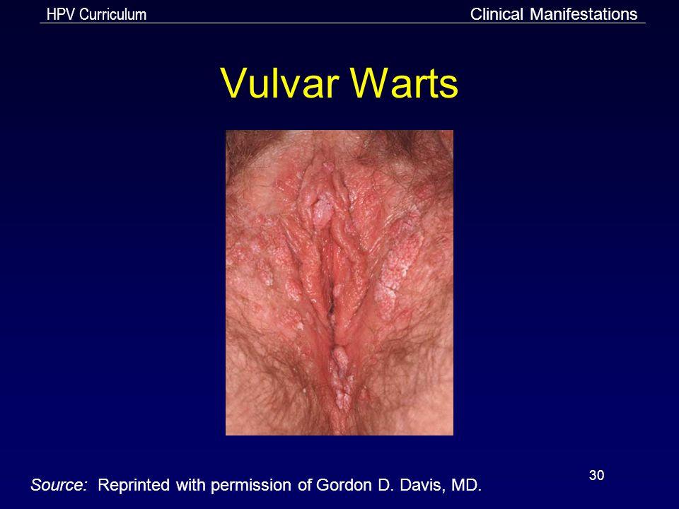 Vulvar Warts Clinical Manifestations