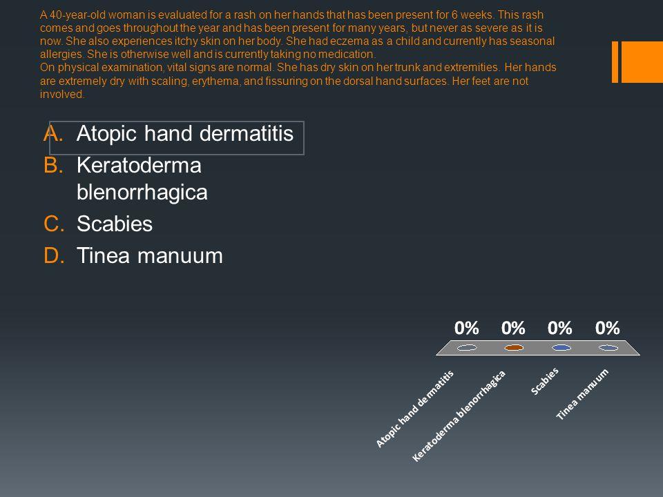 Atopic hand dermatitis Keratoderma blenorrhagica Scabies Tinea manuum