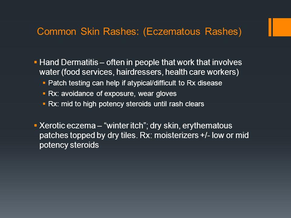 Common Skin Rashes: (Eczematous Rashes)