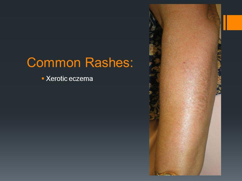 Common Rashes: Xerotic eczema