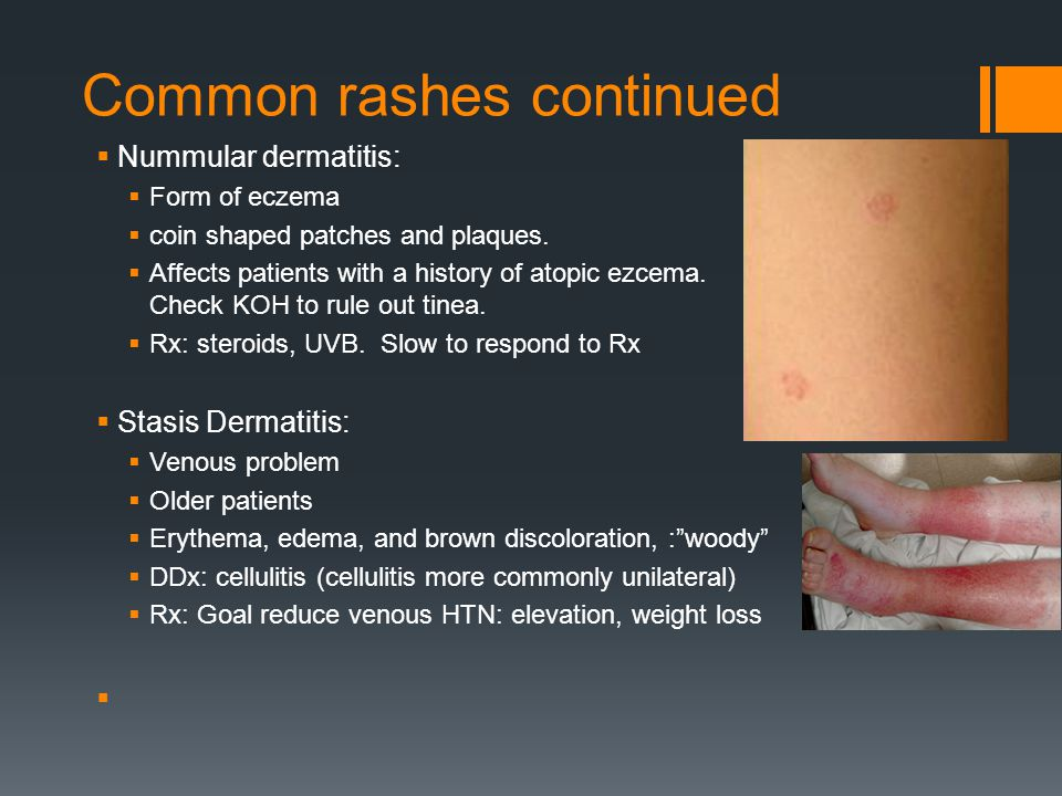 Common rashes continued