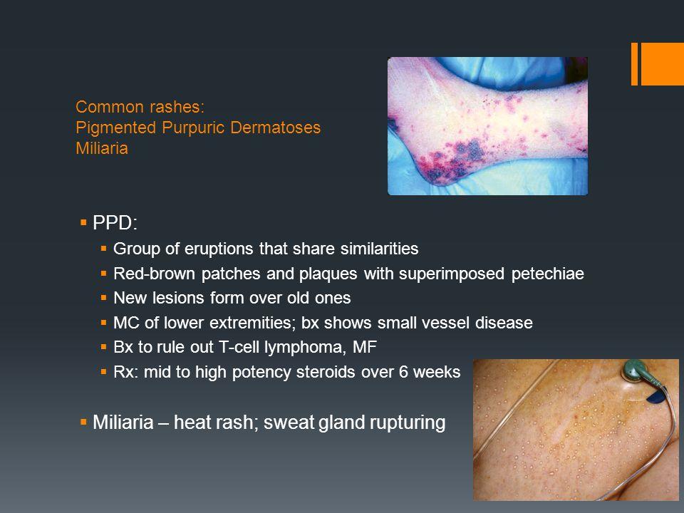Common rashes: Pigmented Purpuric Dermatoses Miliaria