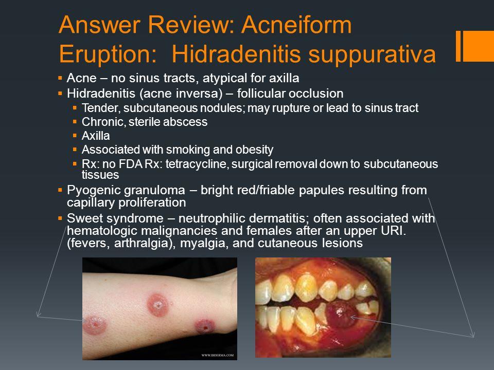 Answer Review: Acneiform Eruption: Hidradenitis suppurativa