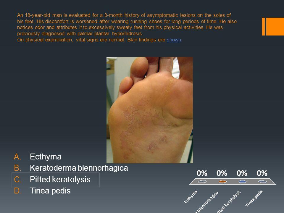 Keratoderma blennorhagica Pitted keratolysis Tinea pedis