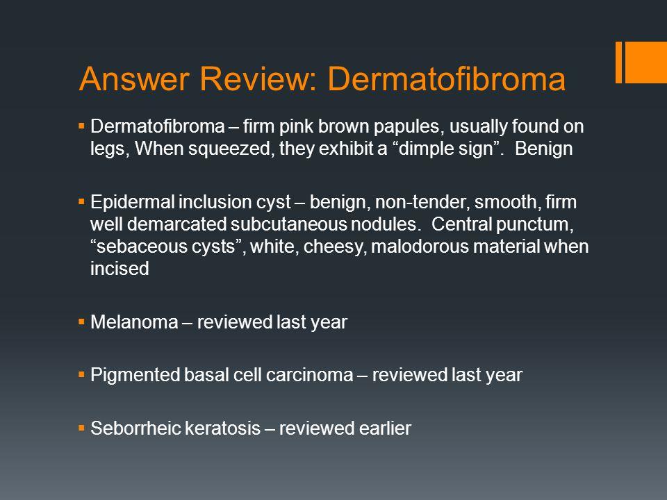 Answer Review: Dermatofibroma