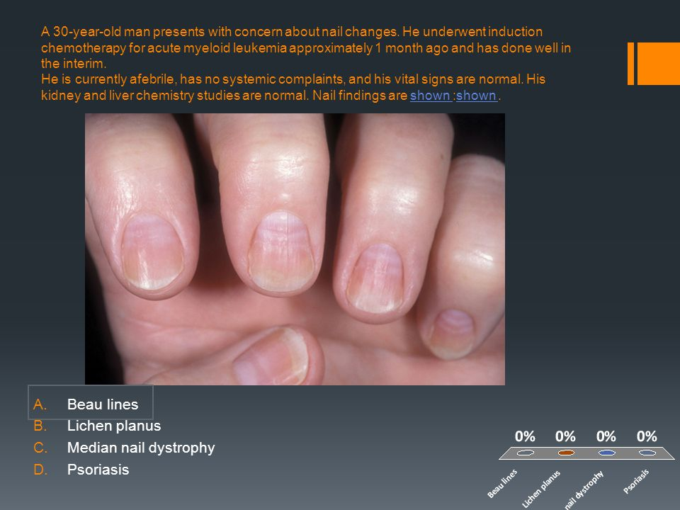 Beau lines Lichen planus Median nail dystrophy Psoriasis