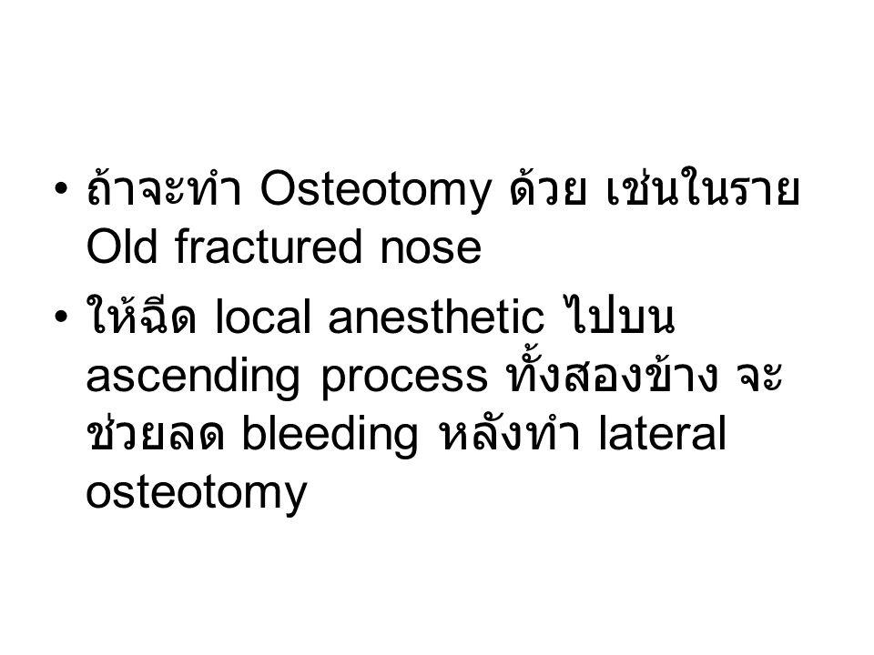 ถ้าจะทำ Osteotomy ด้วย เช่นในราย Old fractured nose