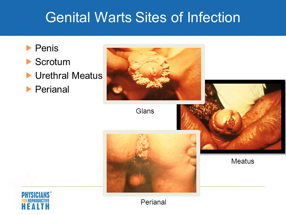 Genital Warts Sites of Infection
