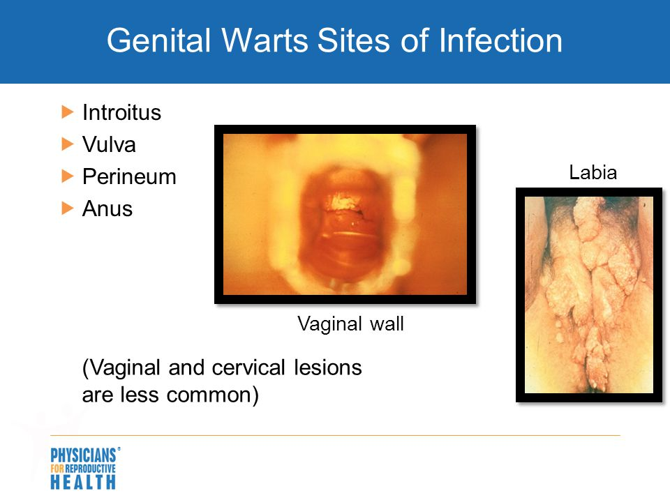 the causes symptoms and treatment of genital warts Fortis hospitals has best genital warts medication in india with top doctors have years of experience overview covers symptoms, causes, risk factors, complications, prevention of this diseases.