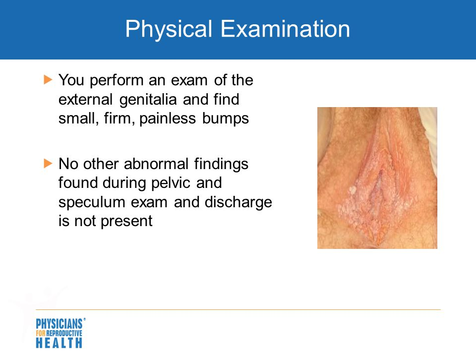 Physical Examination You perform an exam of the external genitalia and find small, firm, painless bumps.