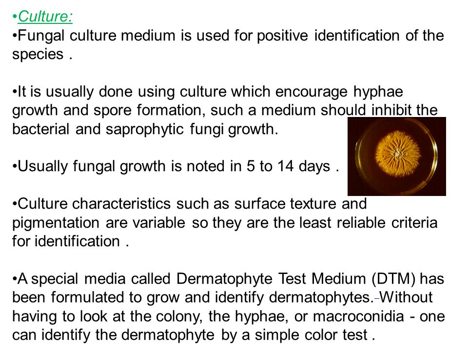 Culture: Fungal culture medium is used for positive identification of the species.
