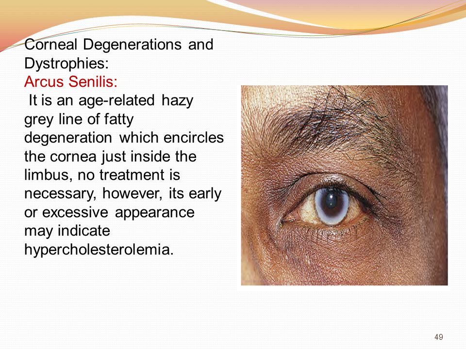 Corneal Degenerations and Dystrophies: