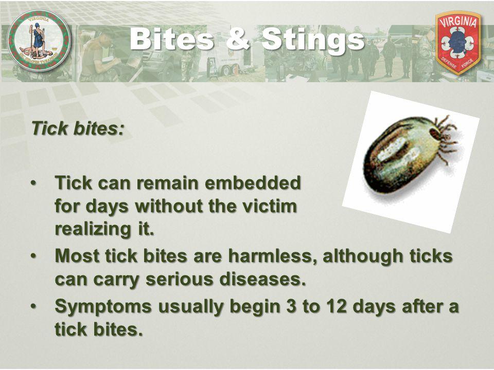 Bites & Stings Tick bites: