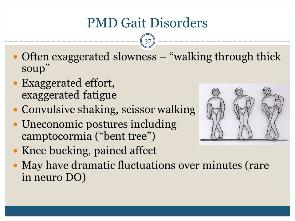 PMD Gait Disorders Often exaggerated slowness – walking through thick soup