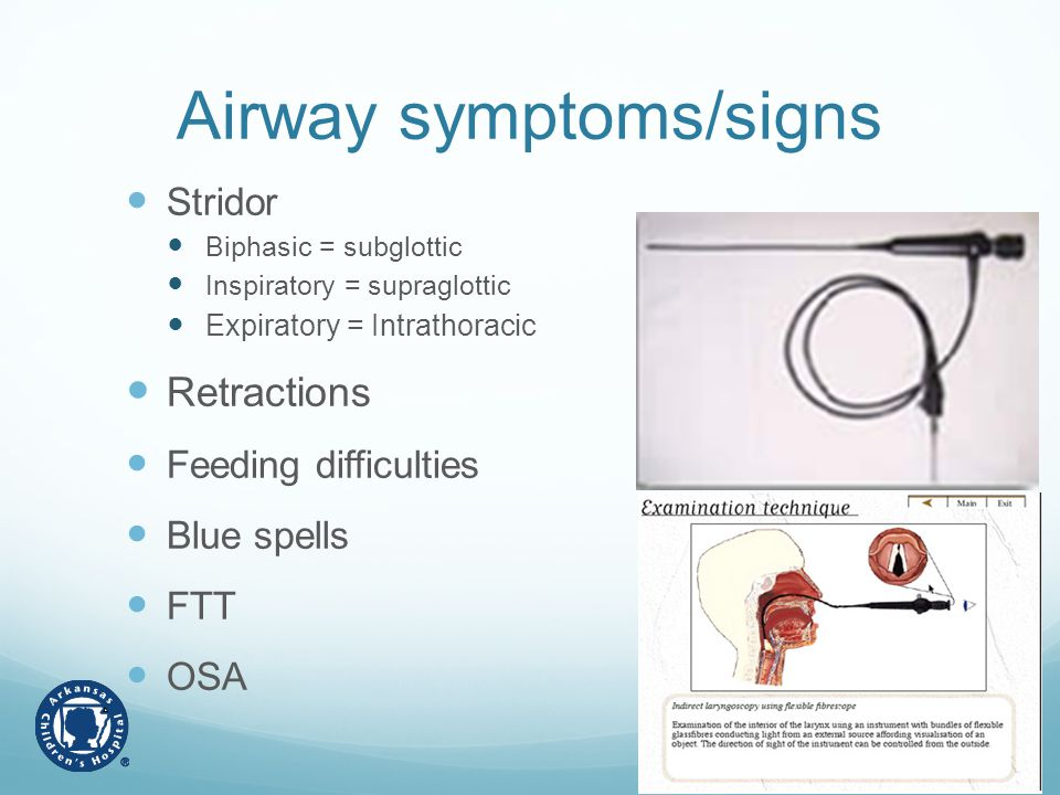 Airway symptoms/signs