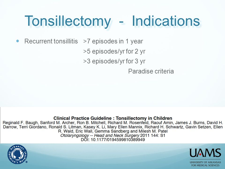 Tonsillectomy - Indications