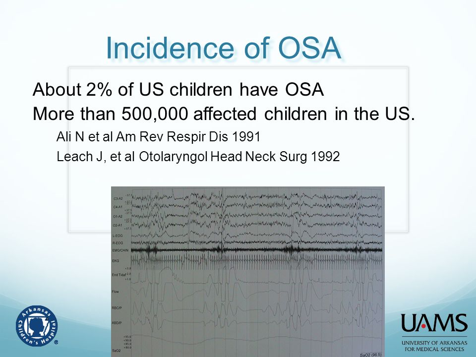 Incidence of OSA About 2% of US children have OSA
